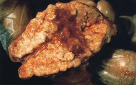 tuberculous lymph node: tuberculosis in camelids